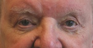 before and after blepharoplasty2